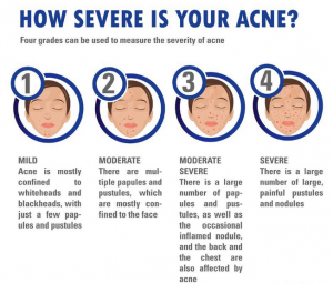 problem of acne