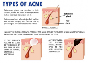 There are many types of acne